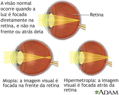 verifica hipermetropia miopia este aproape sau departe