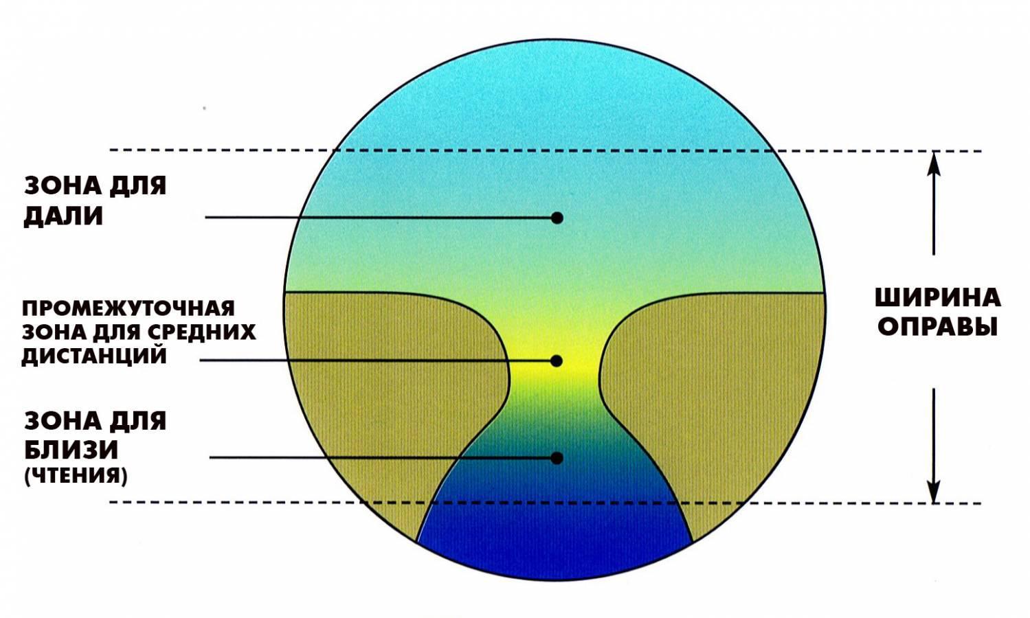 viziune minus 3 dioptrii