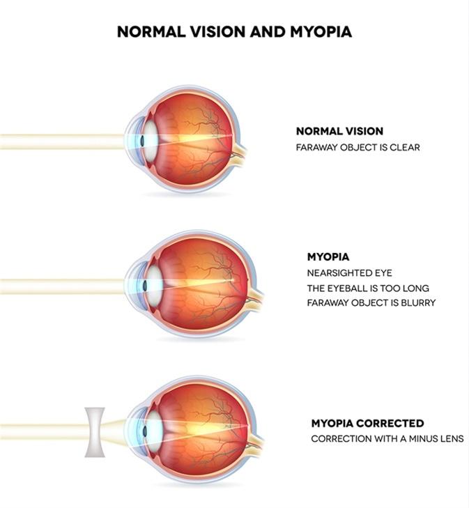 Miopia: cauze, simptome, tratament