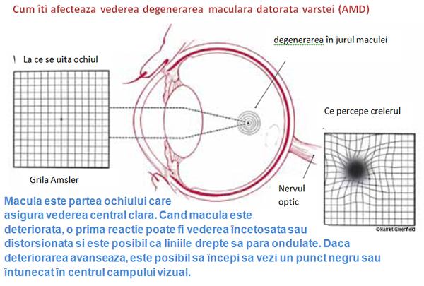 patologia vederii în bolile generale