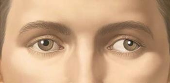 vedere încețoșată ochi roșii