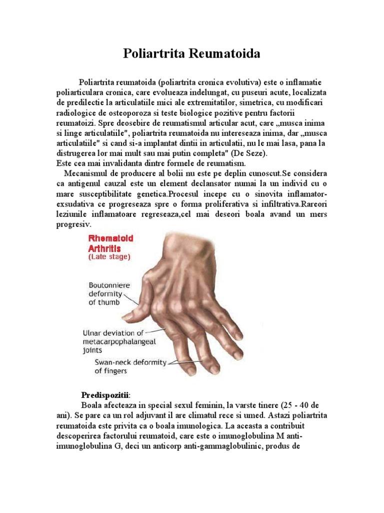Artrita reumatoida - complicatii oftalmologice