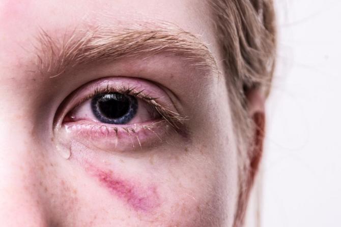 siliconul din ochi afectează vederea