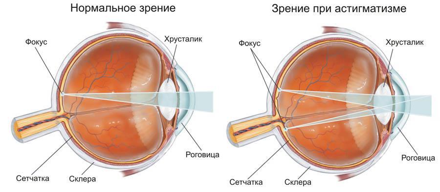 astigmatism și hiperopie
