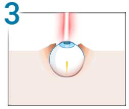 Chirurgie de restaurare a vederii pentru miopie