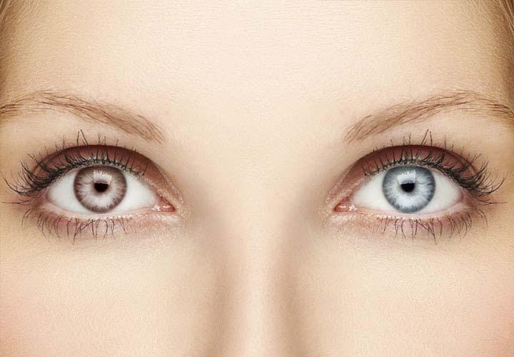 ochi diferiți pentru vedere viziunea 5 la 14 ani