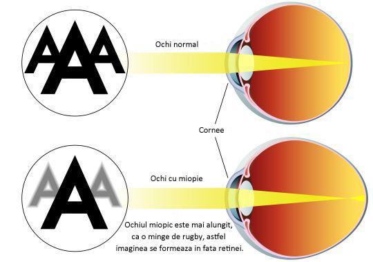 miopie simplă boli vedere slabă