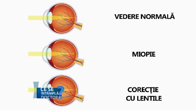 miopia poate fi tratată vederea este amețită