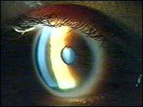 O femeie oarbă şi-a recăpătat vederea după un controversat tratament cu celule stem
