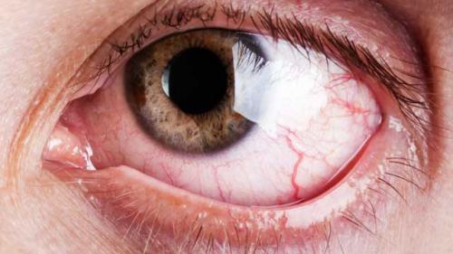 goji pentru a îmbunătăți vederea