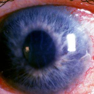 afectarea vizuală afectează
