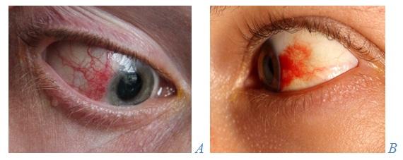 metode de restaurare a forumului de viziune miopie congenitală, nu progresivă