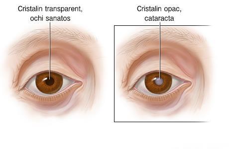Aniridia: cauze, simptome, diagnostic, tratament
