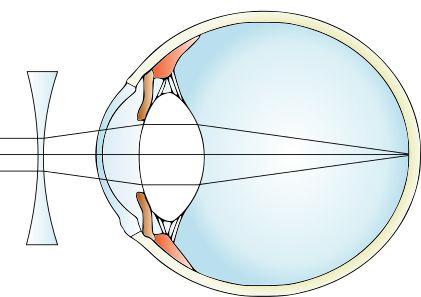 care este acuitatea vizuală în miopie