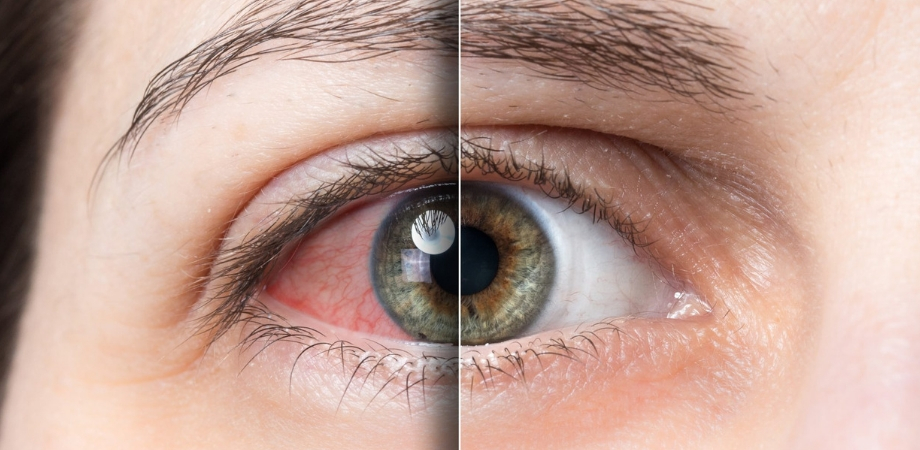 decât ochii picurători pentru a restabili vederea