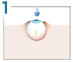 cum să tratăm miopia și unde corectarea laserului perioada postoperatorie
