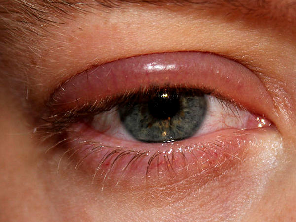metode tradiționale de tratament al vederii forum am miopie