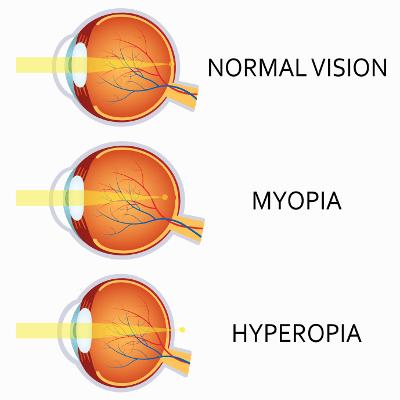minus 10 miopie greață și pierderea vederii