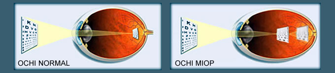 minus 10 miopie 5 vederea se poate deteriora