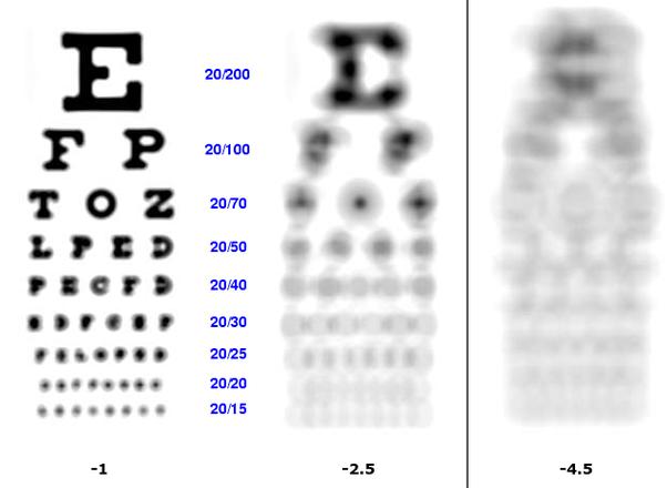 viziune la minus 100 dioptrii pentru deficiențe de vedere