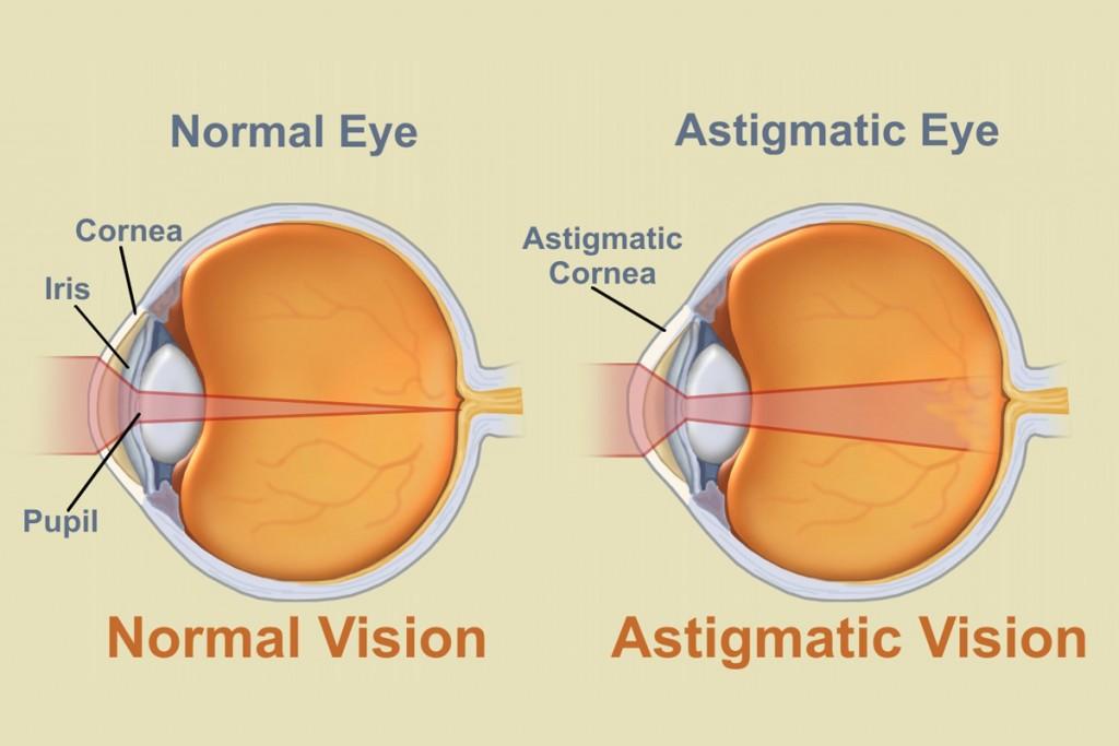 myopia astigmatism presbyopia