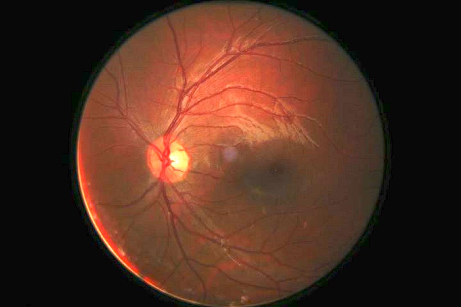refacerea orbirii vederii