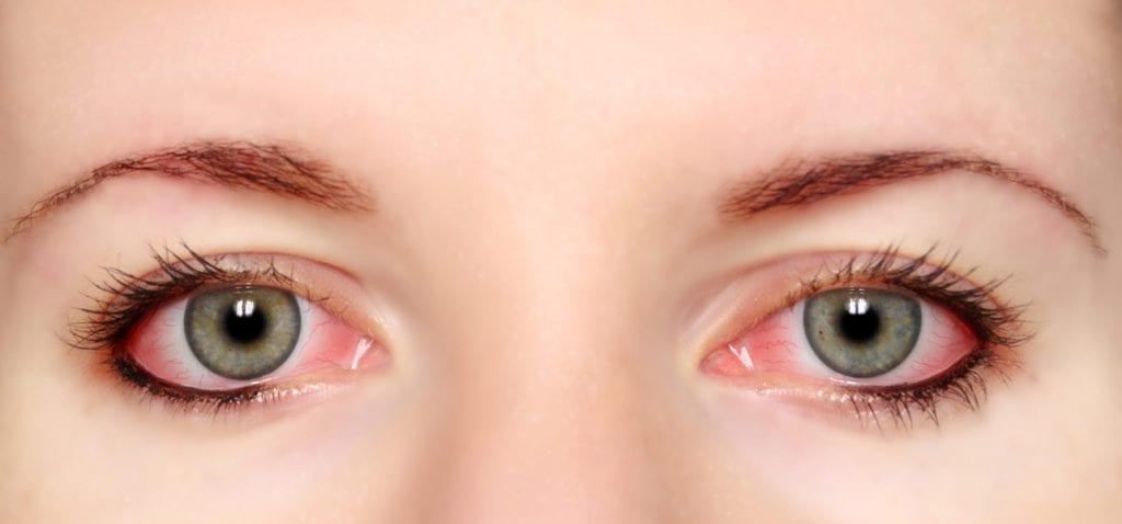modul în care oboseala afectează vederea viziunea posturală s-a îmbunătățit